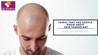 Hair Transplantation in Bangalore |