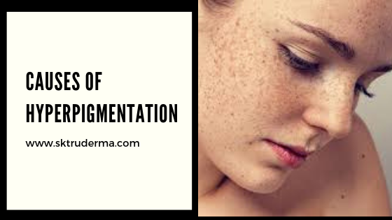 Hyperpigmentation Treatments in Sarjapur Road | SKTruderma