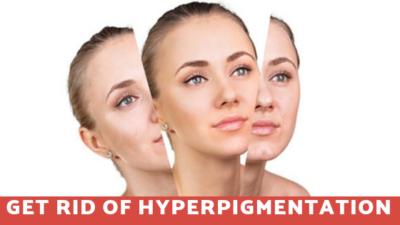 Hyperpigmentation Treatments in Sarjapur Road
