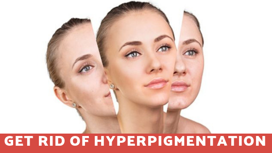Hyperpigmentation Treatments in Sarjapur Road
