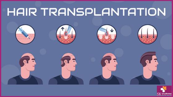 Hair Transplant Surgery | Hair Loss Treatment in Bangalore