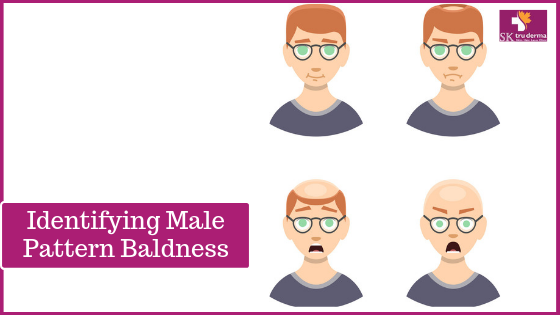 Identifying Male Pattern Baldness | Hair Loss Treatments in Bangalore