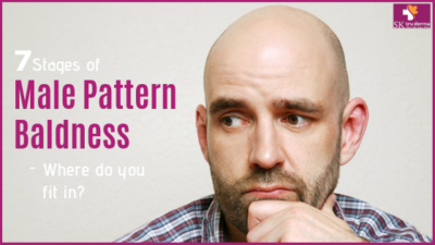 male pattern baldness stages - which stage you are in