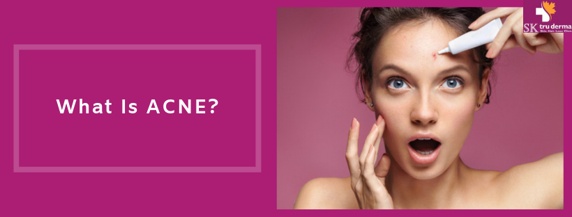 Acne | Acne Treatment in Sarjapur Road