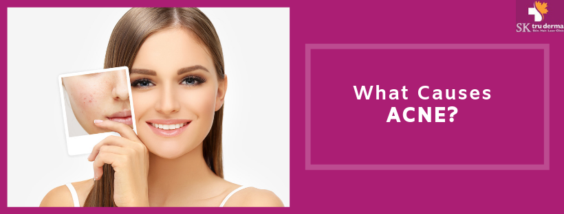 Causes of Acne | Acne Treatment in Sarjapur Road