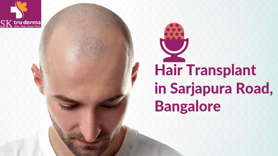 Hair Transplant in Sarjapura Road, bangalore