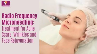 Micro Needling Treatments in Sarjapur Road